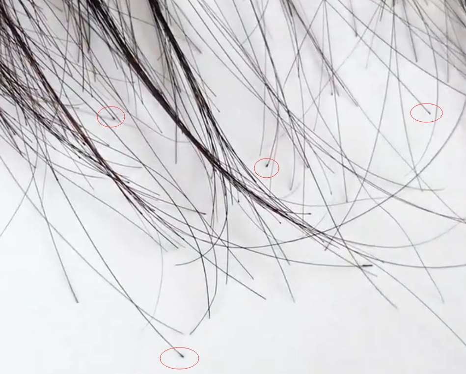dyed hair follicles